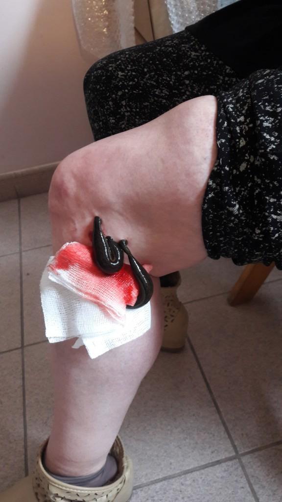 Stan zapalny kolana z przystawionymi pijawkami lekarskimi